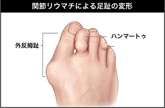 関節リウマチ_足変形.jpg